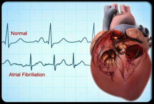 انواع مرض القلب عند الحامل!