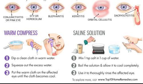 اسباب احمرار العين وطرق علاجها
